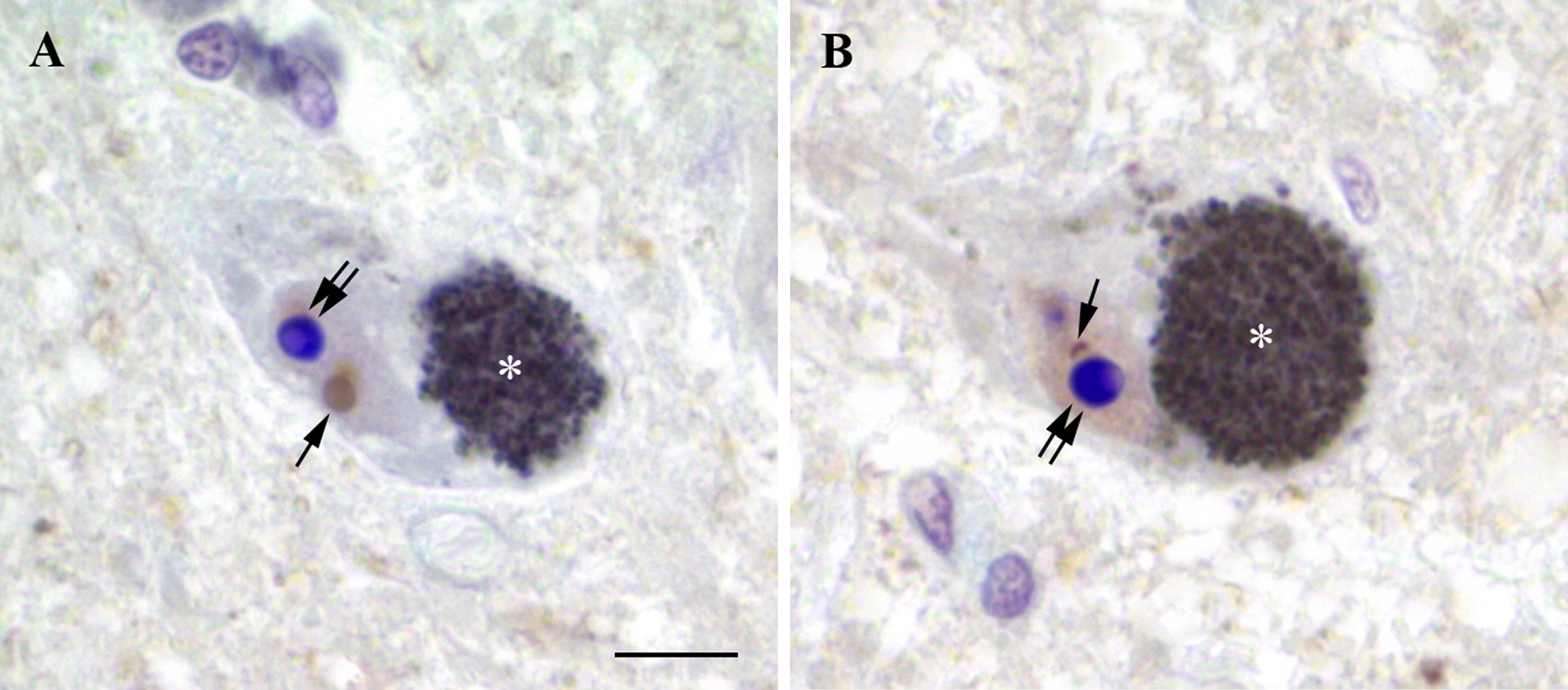 Figure 2. Ubiquitin immunohistochemistry of the human substantia nigra pars compacta. Asterisk (*) indicates neuromelanin accumulation in the neuronal cytoplasm; single arrow – ubiquitin-immunopositive (brown) structures in the neuronal nucleus; double arrow – nucleolus. Note the weak ubiquitin immunoreactivity in the nucleoplasm (B). Counterstained with cresyl violet. Bar scale – 10 µm.