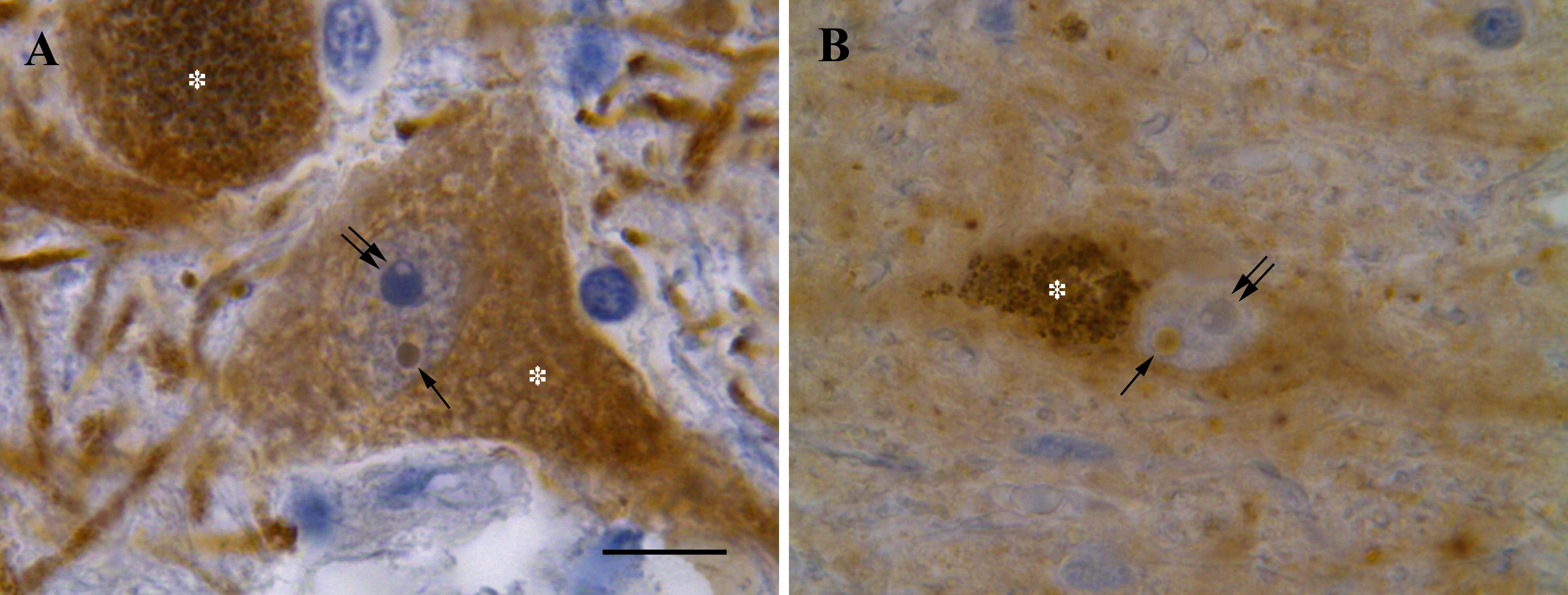 Figure 4. Marinesco bodies in melanized neurons of the human substantia nigra pars compacta. A) Intensive tyrosine hydroxylase-immunoreactivity (brown) is distributed mostly in the cytoplasm of a neuron and many processes. The neuronal nucleus exhibits weak tyrosine hydroxylase-immunoreactivity with exception of a pronounced immunohistochemical reaction in the round Marinesco body-like structure (single arrow). Nucleolus (double arrow) is devoid of tyrosine hydroxylase-immunoreactivity. Asterisk (*) indicates neuromelanin accumulation in the neuronal cytoplasm. B) Intensive nitric oxide synthase-immunoreactivity (brown) is seen predominantly in the cytoplasm of a neuron with many neuromelanin granules (asterisk). The neuronal nucleus is mostly immunonegative with only one nitric oxide synthase-immunoreactive round Marinesco body-like structure (single arrow). Note a homogeneously stained core and a pale perimembranous halo. Double arrow indicates nucleolus. Counterstaining with hematoxylin. Bar scale – 10 µm.