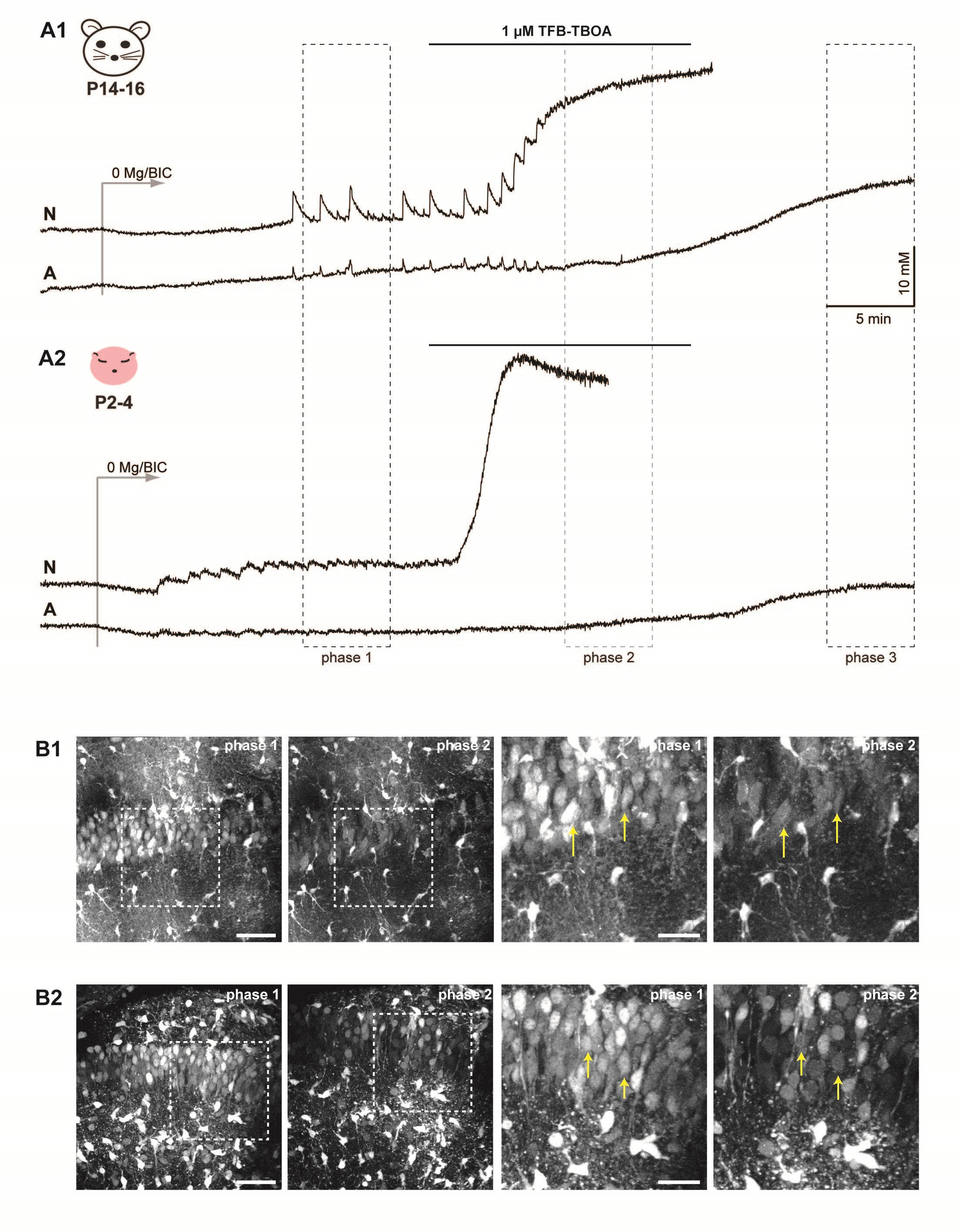 Figure 4. Effects of blocking GLAST and GLT-1 by TFB-TBOA. A) Effect of TFB-TBOA on sodium oscillations and sodium homeostasis in P14-16 (A1) and neonatal slices (A2). B) Maximum projection images of z-stacks taken at a two-photon microscope in phase 1 (0 Mg2+/BIC) and 2 (TFB-TBOA) at two different magnifications in P14-16 (B1) and neonatal slices (B2). Boxes indicate regions shown enlarged on the right. Arrows point to cells that experienced significant dye loss in phase 2. Scale bars: 50 µm (left) and 25 µm (right).