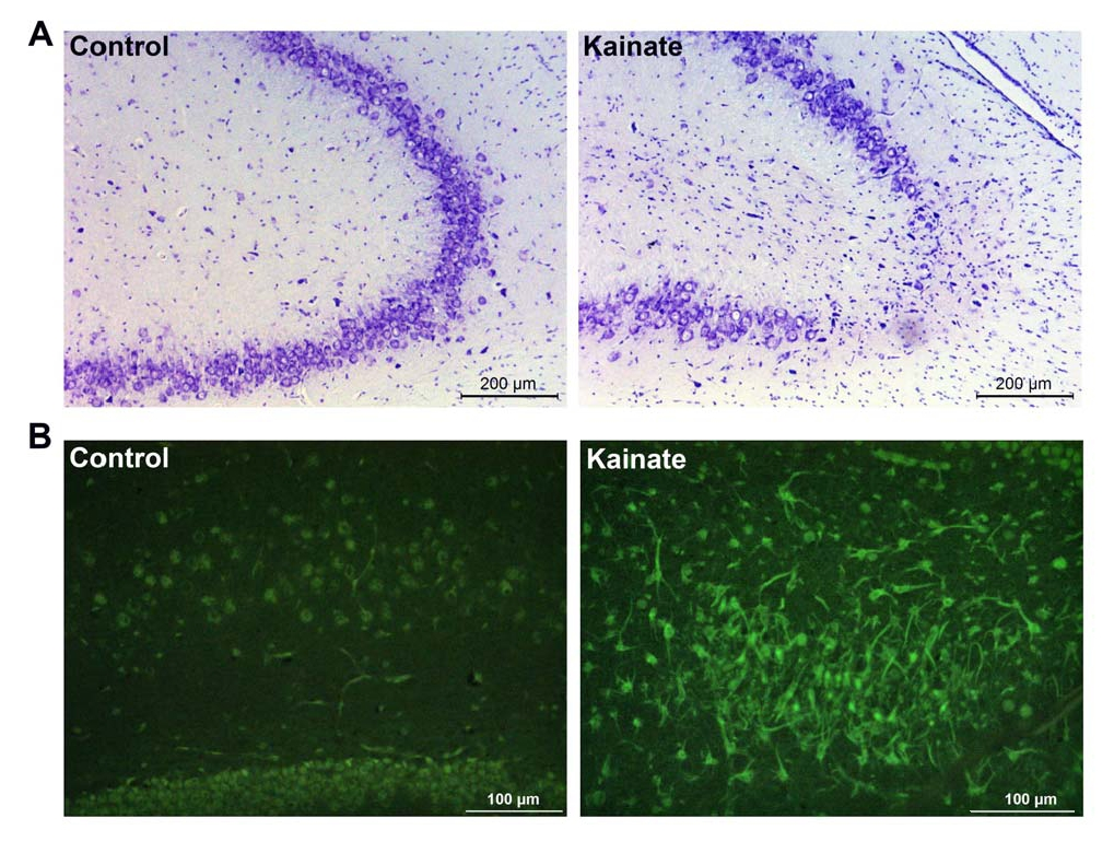 Figure 1. Representative microphotographs demonstrating degenerative changes in rat hippocampus one month after intrabrain (i.c.v.) injection of kainic acid. (A) Neurons of CA3a field of dorsal hippocampus (Nissl staining). (B) Cells of hilus of dentate gyrus (Fluoro-Jade В staining). In A and B, control (on the left) and kainate slices (on the right) are shown.